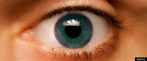 Brown Eyes Turn Blue? Doctor Claims He Can Change The